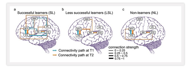 "A Look Back: ""Oh, Boy, This Is Great! Researcher's Scans Show Brain Connections Growing When Learning New Language"""